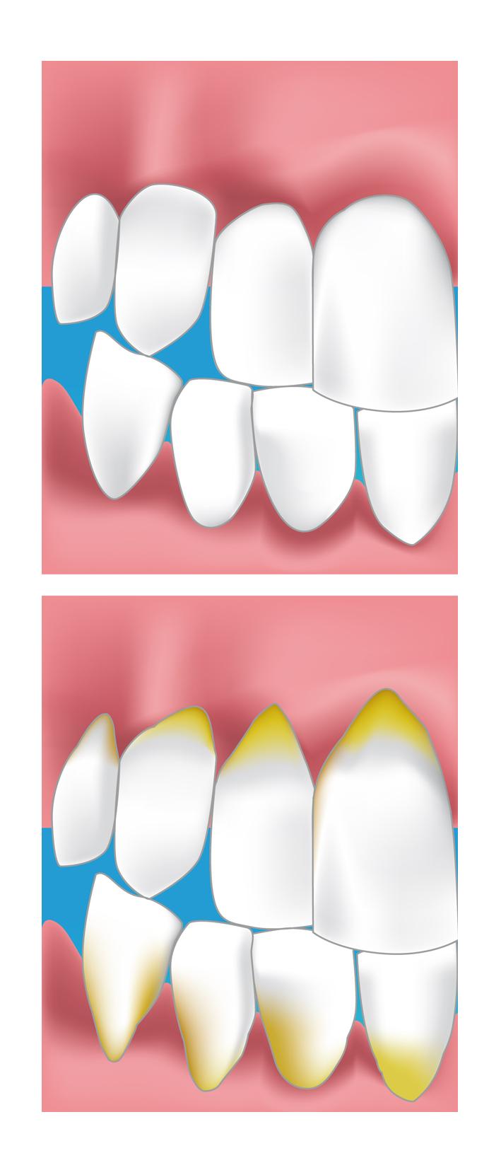 exemple parodontale